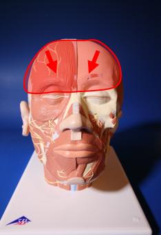 C - Migraines Frontales