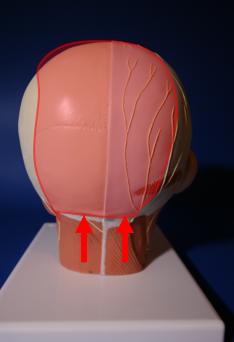 B - Migraines Occipitales