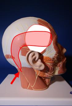 A - Migraines Temporales